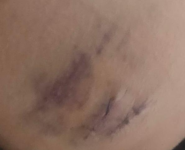 石灰化上皮腫 手術後4日目