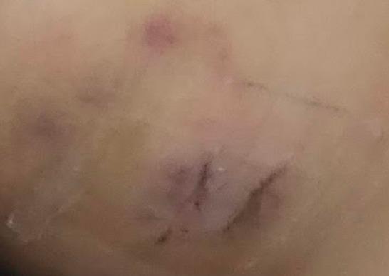 石灰化上皮腫 手術後8日目
